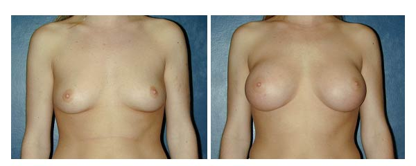 breastaugmentation14.jpg