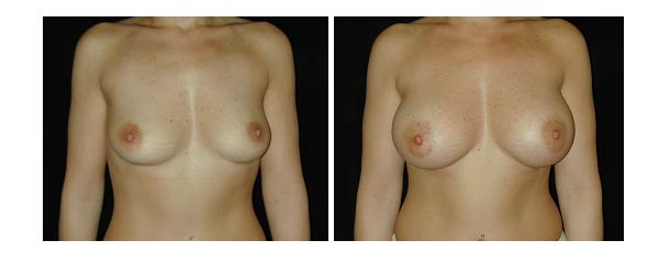 breastaugmentation18.jpg