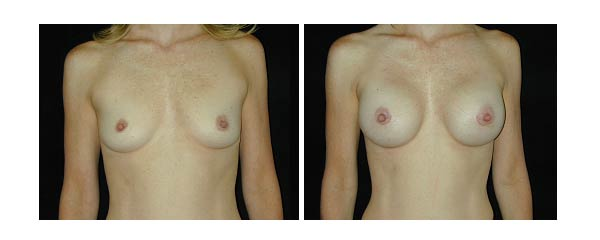 breastaugmentation19.jpg