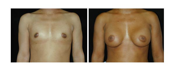 breastaugmentation23.jpg