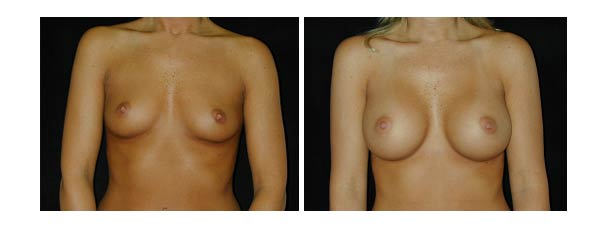 breastaugmentation24.jpg