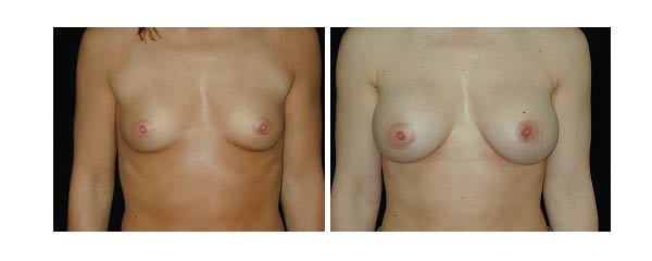 breastaugmentation28.jpg