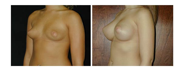 breastaugmentation29.jpg