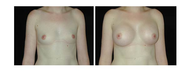 breastaugmentation31.jpg