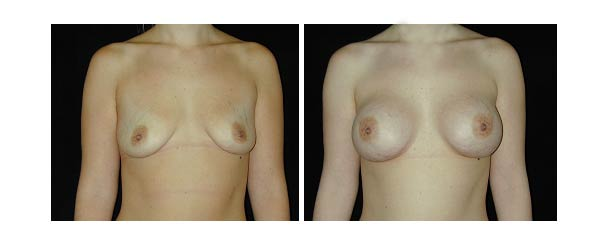 breastaugmentation33.jpg