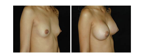 breastaugmentation34.jpg