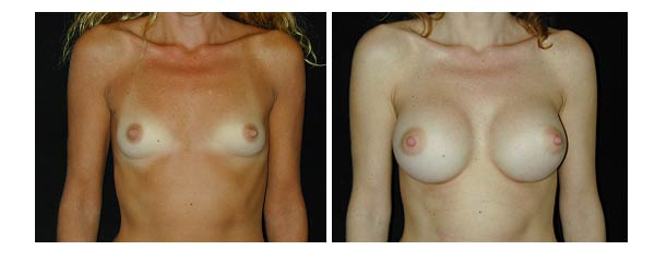 breastaugmentation35.jpg