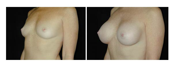 breastaugmentation38.jpg