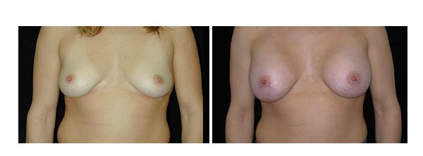 breastaugmentation39.jpg