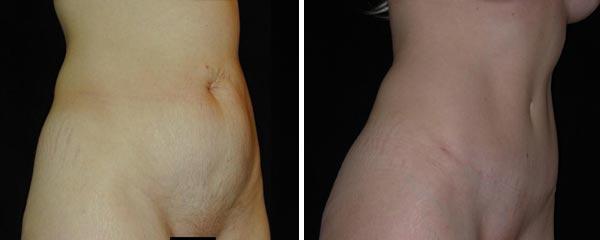 abdominoplasty18.jpg