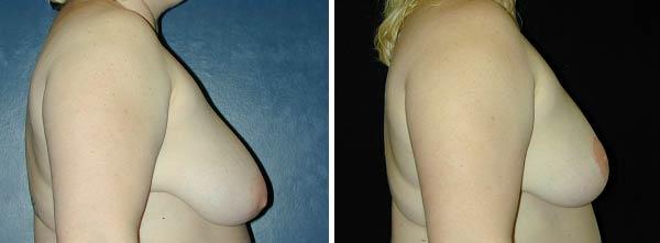 breastreduction01.jpg