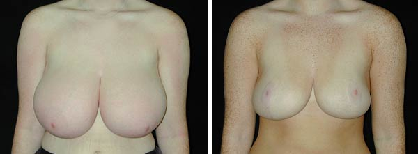 breastreduction02.jpg