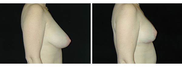 breastreduction03.jpg