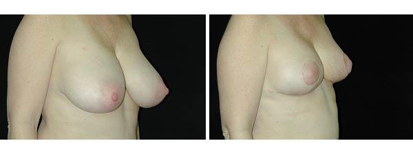 breastreduction04.jpg