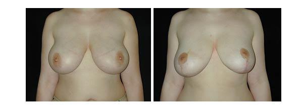 breastreduction05.jpg