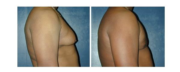 gynecomastia03.jpg
