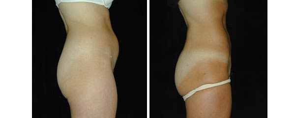 liposuction04.jpg