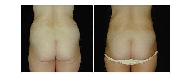 liposuction05.jpg