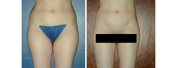 liposuction07.jpg