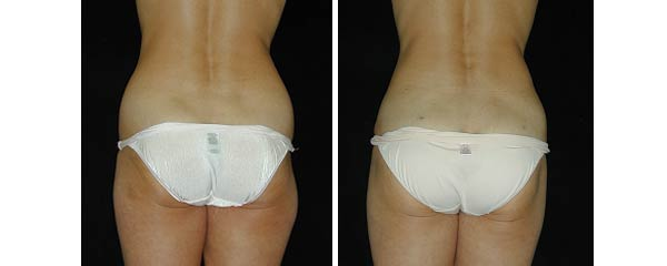 liposuction08.jpg