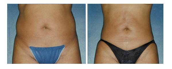 liposuction10.jpg