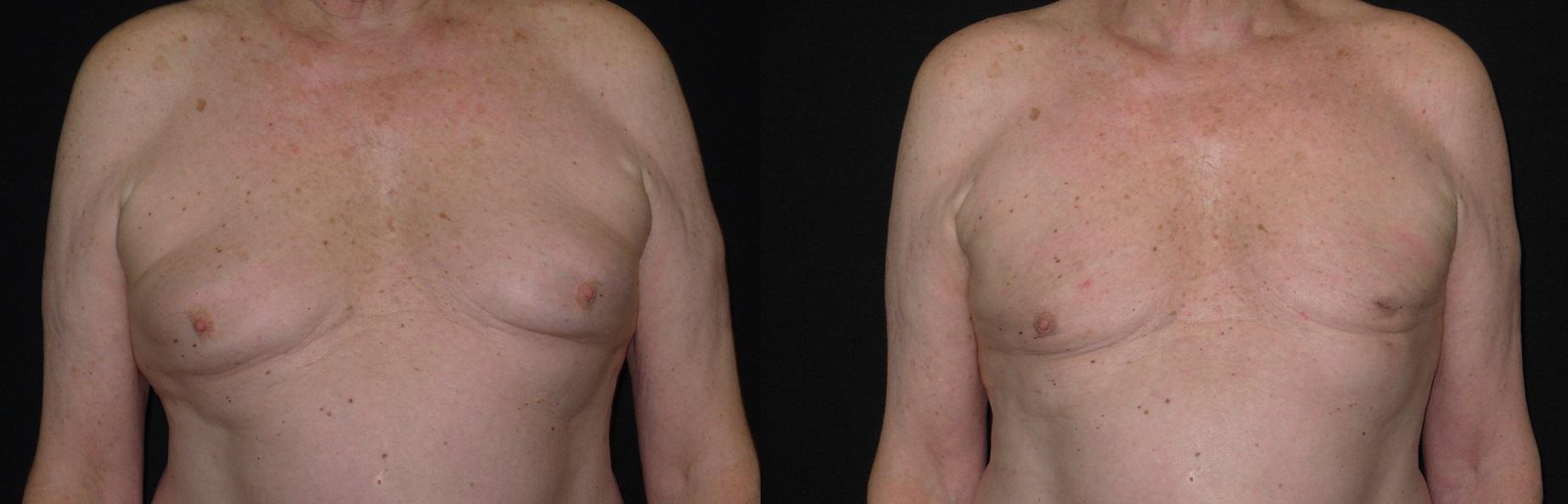 GynecoBA3432.jpg
