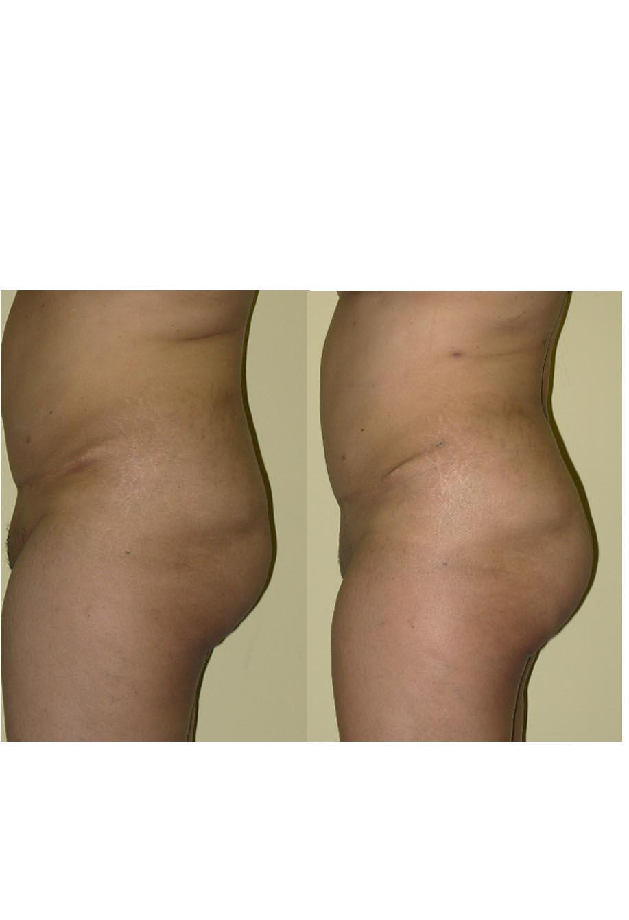 buttock prepost.jpg