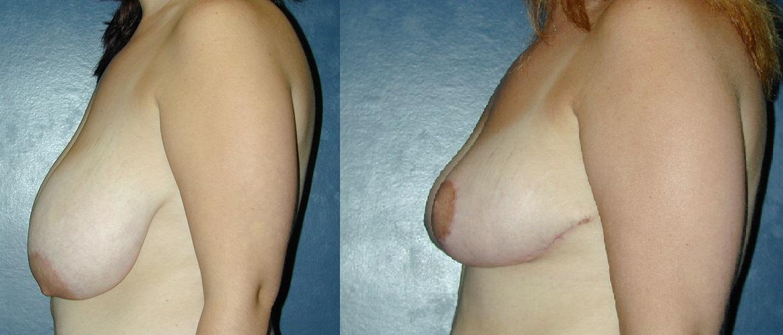 BreastRedBA364.jpg