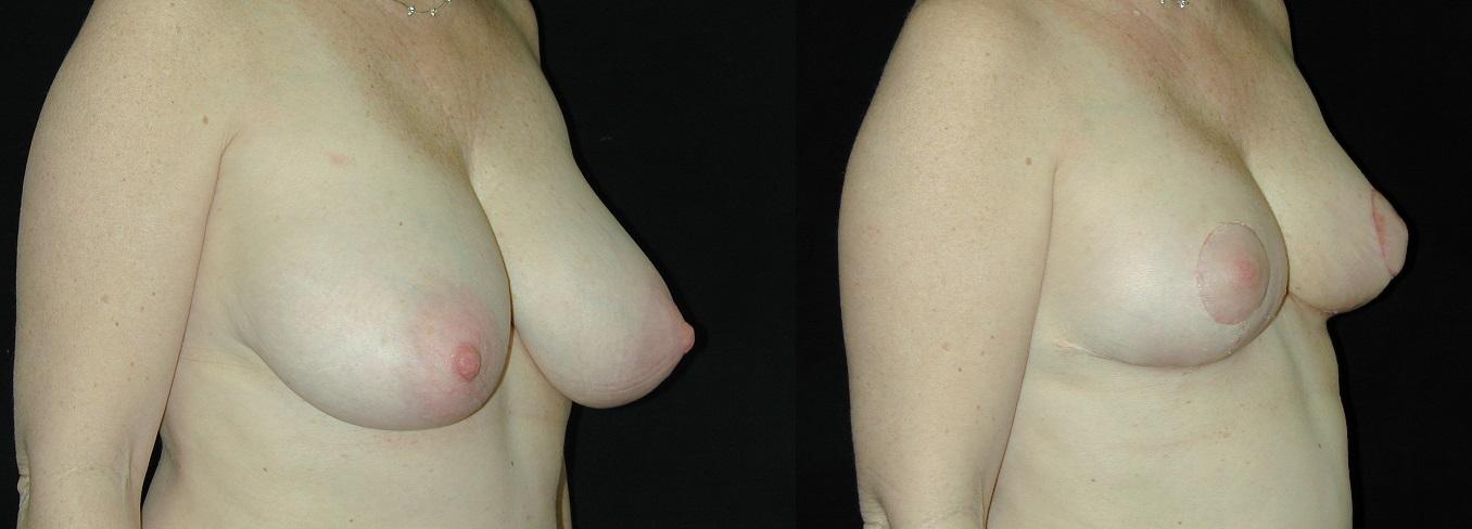 BreastRedBA393.jpg