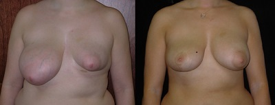 BreastAsymmetBAe3.jpg