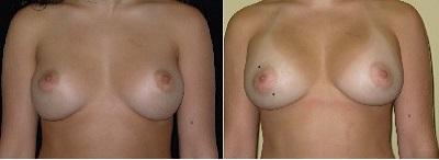 ImplantREv232.jpg