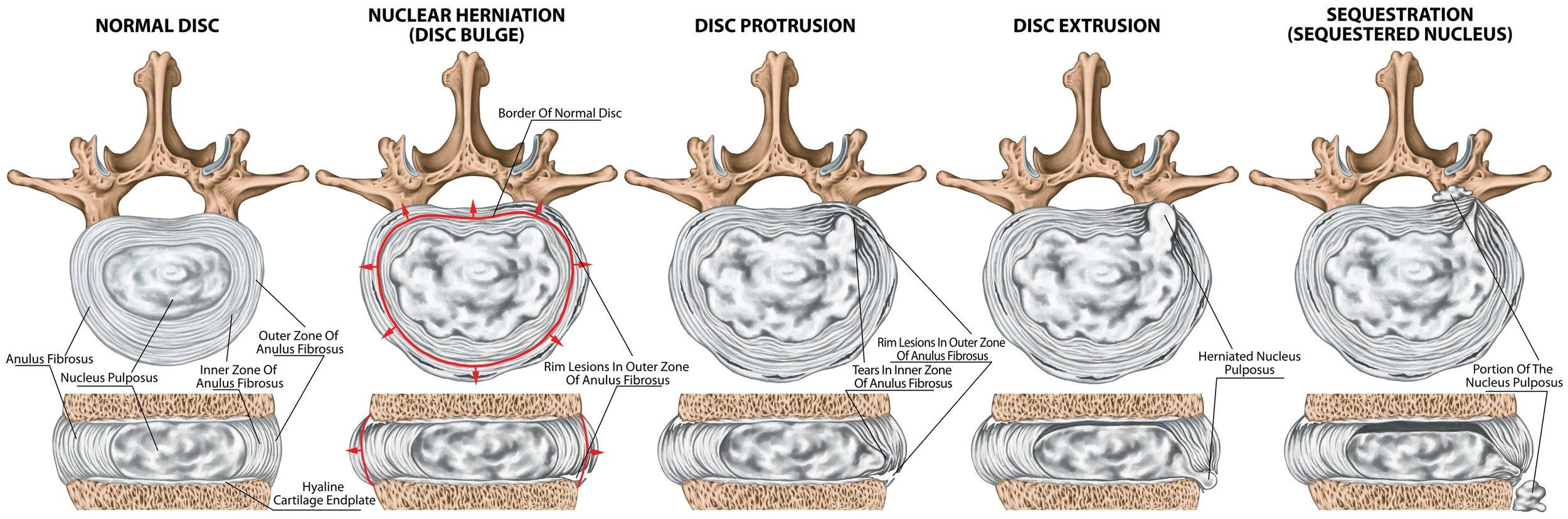 imzdravý disk - bulging - protrúzia - extrúzia - sekvestrácia disku