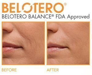 belotero balance before and after