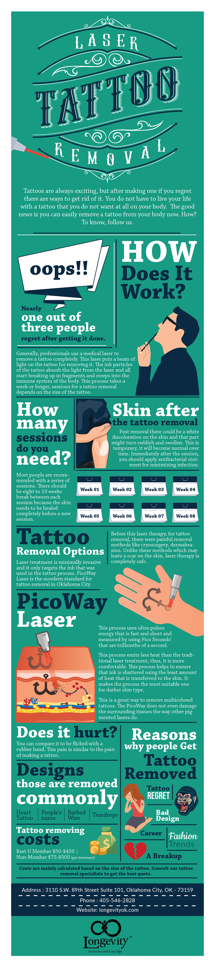 All you need to know about laser tattoo removal.png