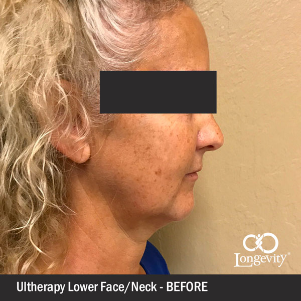 Ultherapy-lower-face---before.jpg