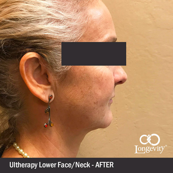Ultherapy-Lower-face---after-2.jpg