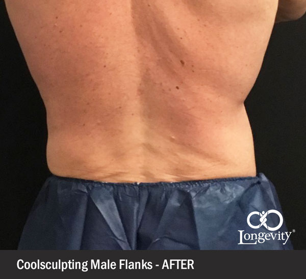 Coolsculpting-flanks-after.jpg
