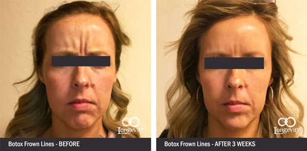 Botox-frown-lines-between-eyebrows-before-and-after.jpg