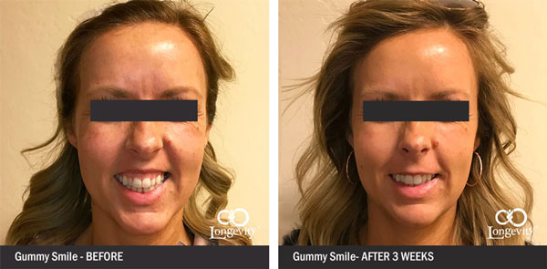 Botox-Before-and-After-gummy-smile-update.jpg