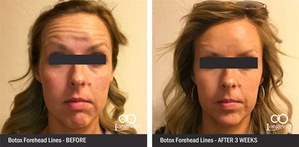 Botox-Before-and-AfterForehead-lines-for-webpage-2.jpg
