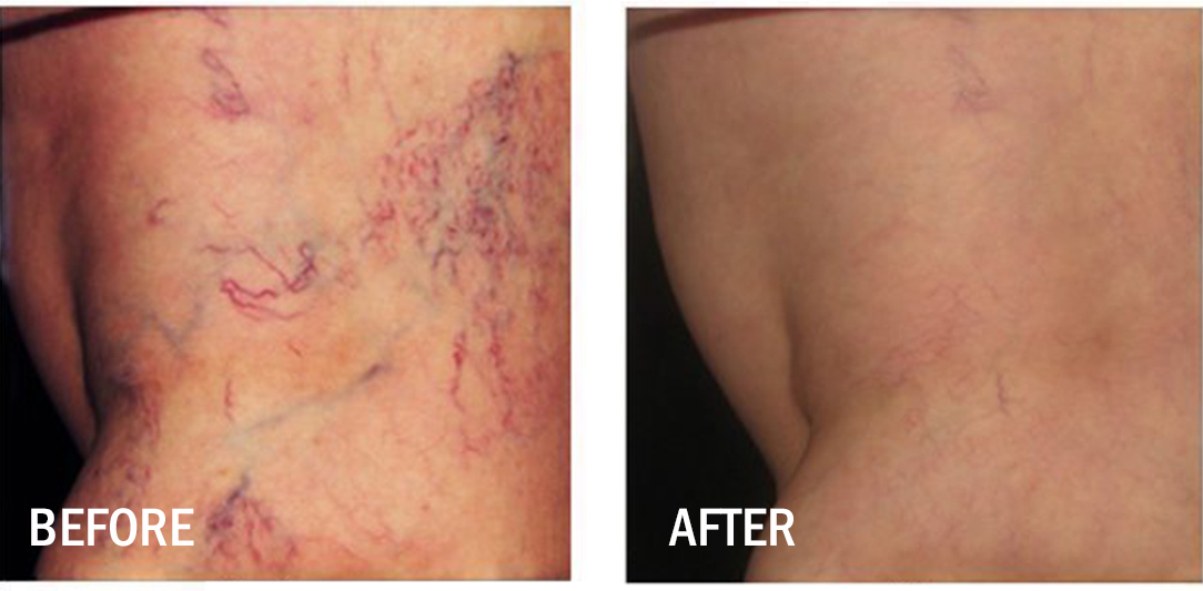 Asclera Treatment Before & After