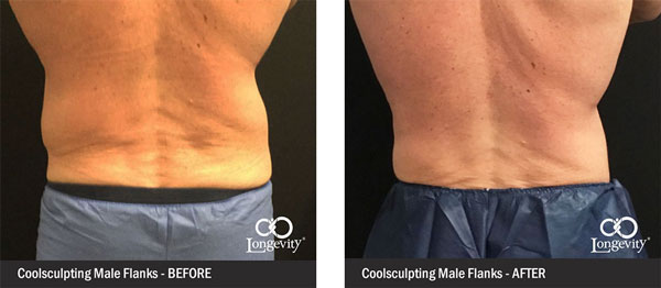 Before-and-After-together--coolsculpting-flanks.jpg