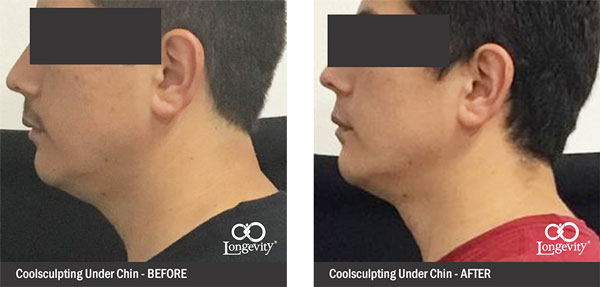 Before-and-After-together-coolsculpting-under-chin.jpg