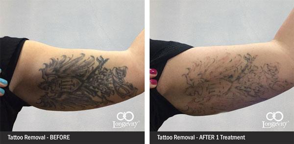 Tattoo Removal in OKC