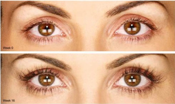 latisse eyelashes before and after
