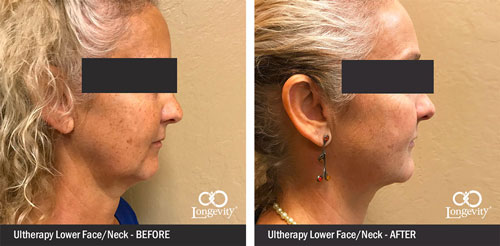 Ultherapy-Before-and-After-together.jpg