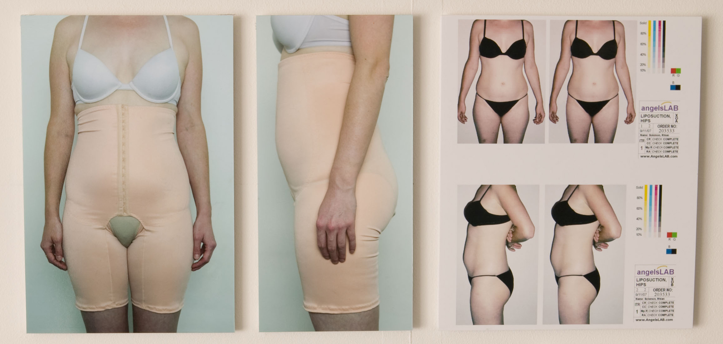 Virtual Liposuctionsmall.jpg