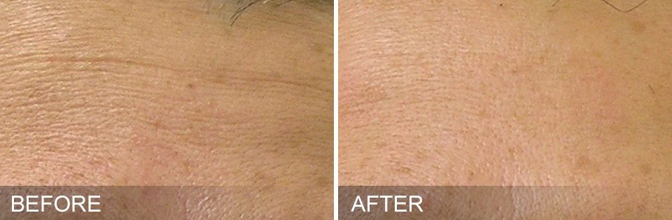 Hydrafacial™ uses intense hydration to remove fine lines and wrinkles. Add CTGF Boost for faster results.
