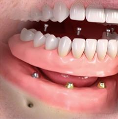 Implant+Screenshot+2.png