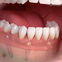 Implant+Screenshot+3.png